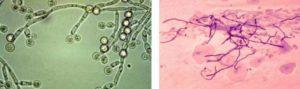 Дрожжеподобные грибы мицеллий не почкующийся
